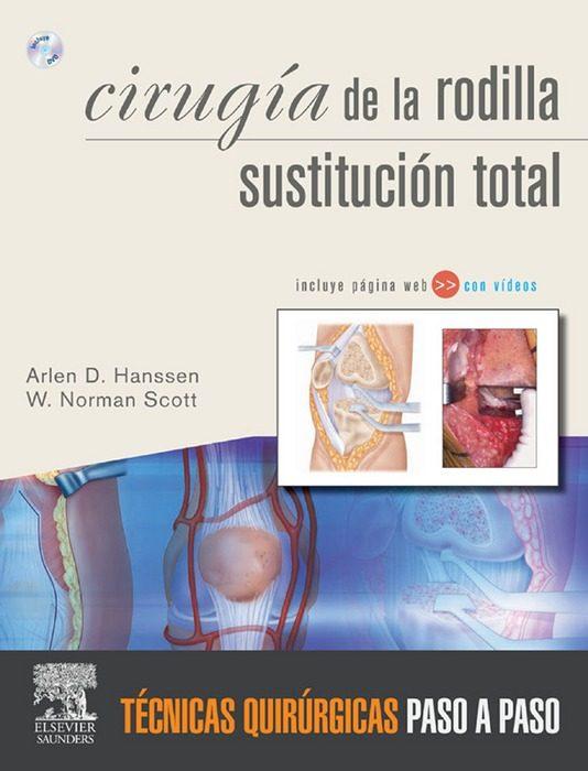 Cirugía La Rodilla. Sustitución Total + Web