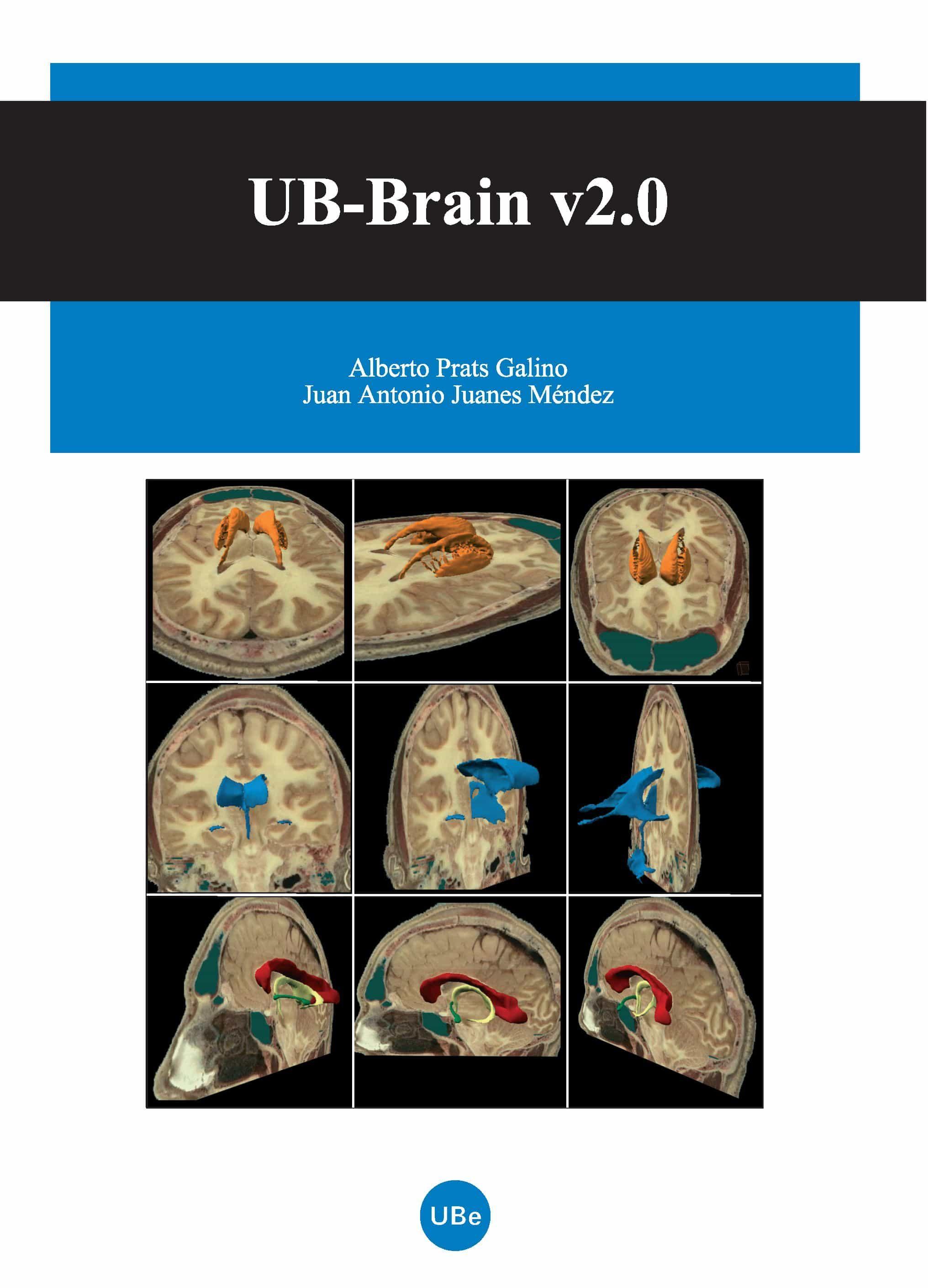 UB-BRAIN V 2.O (CD-ROM) | ALBERTO PRATS | Comprar libro 9788447532155
