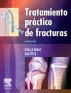 tratamiento practico de fracturas (5ª ed.)-r. mcrae-9788480866385