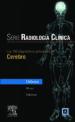 serie pocket de radiologia: los 100 diagnosticos principales en c erebro-9788481747515