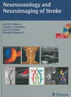 Descarga gratuita de libros de epub en inglés. NEUROSONOLOGY AND NEUROIMAGING OF STROKE
