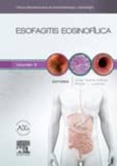 Descargar ebooks para ipod nano gratis ESOFAGITIS EOSINOFILICA: CLINICAS IBEROAMERICANAS DE GASTROENTEROLOGIA Y HEPATOLOGIA 9788490229545