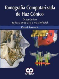 La mejor descarga del foro de libros electrónicos TOMOGRAFIA COMPUTARIZADA DE HAZ CONICO de D. SARMENT