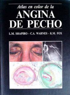 Upgrade6a.es Angina De Pecho Image