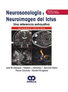 Libros en francés descargar NEUROSONOLOGÍA Y NEUROIMAGEN DEL ICTUS. UNA REFERENCIA EXHAUSTIVA + ACCESO A CONTENIDOS ONLINE (2ª ED.) FB2 (Spanish Edition)