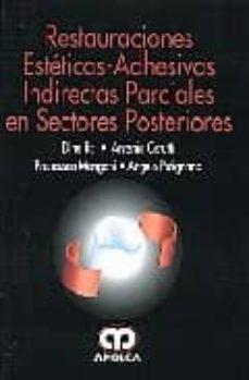 Descargas de libros electrónicos en español gratis RESTAURACIONES ESTETICAS-ADHESIVAS INDIRECTAS PARCIALES EN SECTOR ES POSTERIORES (Literatura española)