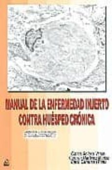 Descargador de libros online MANUAL DE LA ENFERMEDAD: INJERTO CONTRA HUESPED CRONICA in Spanish 9788488825995 MOBI de C. SOLANO